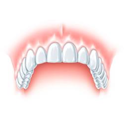 Zánět dásní a zubů